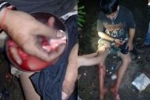 วัยรุ่นเมืองคอนเล่นพิเรนทร์ แกะกระสุนปืนหวังแยกดินปืน-ตะกั่ว เจอลั่นใส่มือ นิ้วขาด