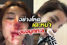 คบ2เดือนทำร้าย3รอบ! แฟนตีนโหดเตะหน้าสาวจมูกทะลุแค่ปลดบล็อกเฟซผู้
