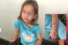 เพื่อนบ้านทนไม่ไหว เด็กหญิงลูกครึ่งวัย 4 ขวบ โดนแม่แท้ๆ ทำร้าย
