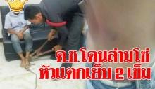 ผู้ใหญ่บ้านผงะ เห็นเด็กชายวิ่งหนีในหมู่บ้าน โซ่ตรวนติดที่ขา หัวแตกเย็บ 2 เข็ม