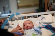 เหลือเชื่อ ทารกมหัศจรรย์ไร้จมูกลืมตาดูโลก โอกาสแค่ 1 ใน 197 ล้านคน แม่ตั้งกองทุนช่วย (ชมภาพ)