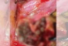ระวังให้ดี!! อุทาหรณ์ นอนไม่กางมุ้ง แมลงวันวางไข่ในปาก และนี้คือสิ่งที่เกิดขึ้น!!