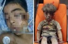 เศร้า !! เด็กน้อยวัย 5 ขวบชาวซีเรียที่โดนระเบิดไลล่าสุดต้องรับข่าวร้ายพี่ชายจากไป