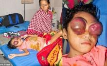 น่าเวทนาเด็กหญิงคันลูกตาเมื่อเดือนก่อน จากนั้นค่อยๆ ถลนออกมา พบเป็นมะเร็ง-ไร้เงินรักษา