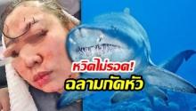 สาวเรียนดำน้ำช็อก! ถูกฉลามกัดหัว เลือดโชกเย็บ 70 เข็ม