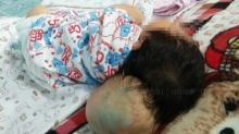 แม่ใจสลาย...วอนช่วยเด็กหญิงวัย13วัน กะโหลกรั่ว สมองไหลอยู่นอกหัว