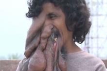 ทรมาน!!หนุ่มมีเนื้องอกคล้ายงวงช้าง เชื่อพระพิฆเนศ!!