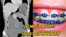 สาวปวดท้องหนักมาหาหมอ สแกนเจอลวดจัดฟันในลำไส้ พบอยู่ในท้องมานับ 10 ปี