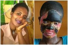สลด!สาวเอธิโอเปียถูกสามีเลวสาดกรดช ต้องบินมารักษาที่กรุงเทพฯ