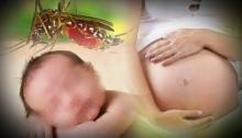 เจอแล้ว! 'เด็กหัวเล็ก' 3 คน อีก 1 อยู่ในท้องแม่ รอลุ้นยืนยันเชื้อ 'ซิกา'