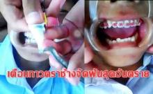 คิดได้ไงแฟชั่นจัดฟันเถื่อน!!! เด็กคนนึงใช้กาวตราช้างติดลวดจัดฟันแฟชั่น
