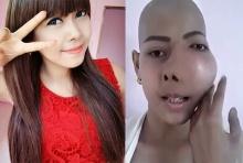 สงสาร! สาวป่วยแก้มบวมจากพิษมะเร็ง อ้อนวอนหมอฝีมือดีช่วยรักษา