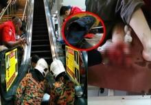 อุทาหรณ์!!บันไดเลื่อนหนีบเท้าเด็กขาด เพราะรองเท้า!?