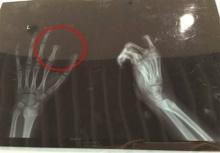 ช็อก!!ด.ช.11ขวบตัดนิ้วขาดต่อหน้าพ่อ โกรธถูกดุเรื่องเล่นเกมส์!!