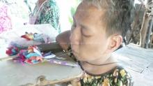 หญิงพิการไร้แขนขาสู้ชีวิต!! ใช้ปากเย็บพรมเช็ดเท้าขาย หาเงินรักษาพ่อแม่ป่วย