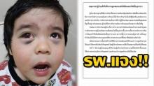 รพ. ดัง แจง เด็กดูดเสมหะจนตาแตก ชี้เกิดขึ้นได้จากการร้อง ไอ ไม่ได้ถูกจับทรมาน?