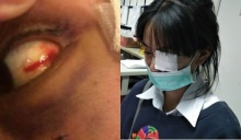 สาวถูกโจ๋ต่อย อาการยังวิกฤติ ตาห้อเลือดเสี่ยงบอด 100%