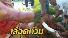 สุดซวย!! หลวงตาวัย 68 ปีโดนฝูงพิทบูล รุมขย้ำแขนเหวอะเลือดอาบท่วมจีวร