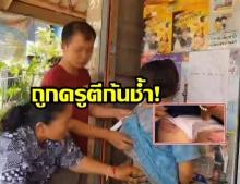 อีกแล้วหรือ!? นร.หญิงป.5 ถูกครูตีจนก้นช้ำ เพราะทำเวรไม่สะอาด