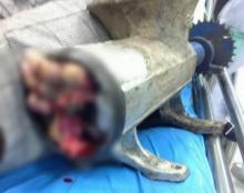 สาวโรงงานพลาด มือหลุดไปในเครื่องบดหมู ขาดสยอง และนี่คือขั้นตอนที่กู้ภัยเอามือออก