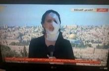 สปิริตแรง!! นักข่าวสาวถูกสะเก็ดระเบิดใส่หน้าขนาดนี้ แต่ขอทำหน้าที่ต่อ!!(มีคลิป)