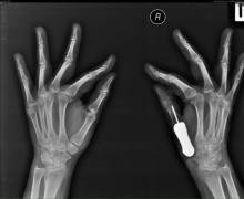 ไทยเจ๋ง! ผ่าตัดใส่กระดูกเทียมทดแทนกระดูกนิ้วสำเร็จรายแรกของโลก