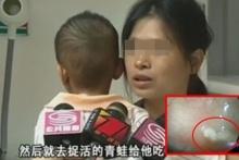 หมออึ้ง!! เจอพยาธิเต็มท้องเด็ก 3 ขวบ เพราะแม่ยัดเจ้าตัวนี้เป็นๆเข้าปากลูก!!!