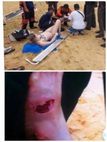 ดร.ธรณ์ ชี้ฝรั่งเป็นแผลที่เท้าระหว่างเล่นน้ำ..ถูกฉลามกัดแน่นอน