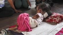 วอนช่วยเหลือน้องเกตน์ เด็กขวบเศษป่วยเป็นโรคหัวบาตร