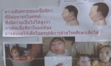 """สธ.เผย! 2 ทารกศีรษะเล็กเกิดจาก """"ซิกา"""" พบเป็นครั้งแรกในไทย"""