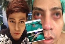 หนุ่มศัลยกรรมคลินิกดัง หน้าพังยับ ทำหนังใต้ตาแบะ