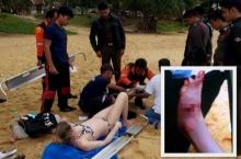 นทท. ถูกสัตว์ปริศนากัดจนเท้าเหวอะ ขณะเล่นน้ำที่หาดกะรน!?