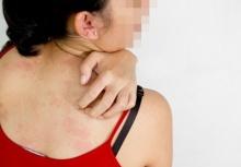 โรคประหลาด!!สาวป่วยภูมิแพ้แฟน ผื่นขึ้นทุกครั้งที่จ้ำจี้กัน!!