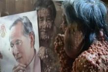 สุดรันทด!!ชายป่วยโรคท้าวแสนปมขอสักการะพระบรมศพในหลวงสักครั้งในชีวิต