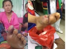 ลูกชายสุดปวดใจ!! แม่ถูกงูพิษกัด!! รพ.วินิจฉัยพลาด ทำแม่เท้าเน่าทั้งหมด!!