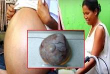 ผงะ!ผ่าตัดสาวท้องโต2ปี เจอก้อนเนื้องอกรังไข่หนัก34กก.
