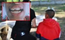 ครูโหด!! ตบนักเรียน ม.2 เลือดกลบปาก-ฟันหัก แถมยังตามไปเตะซ้ำ!!!