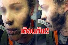 เตือนภัย ! หูฟังระเบิดบนเครื่องบิน ขณะผู้โดยสารหญิงใส่งีบหลับอยู่