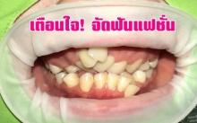 เตือนภัยจัดฟันแฟชั่น น่ากลัวกว่าที่คิด
