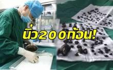 ผงะ!! หมอผ่าตัดเอานิ่ว 200 ก้อนออกจากท้องคนไข้ เผยไม่กินข้าวเช้าเกือบ 10 ปี?!