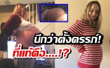 เผยสาเหตุ สาวท้องป่องมหึมา ขนาดหมอยังนึกว่าตั้งครรภ์!!