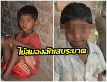 อินเดียป่วน! ไข้สมองอักเสบระบาด เด็กตายกว่า100ราย
