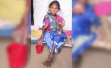 ผวาหนัก!!! หญิงอินเดียป่วยหนักกระดูกหักเบี้ยว เหตุจากน้ำบาดาล