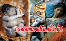 ญาติเกือบโยนทิ้งน้ำ ตกใจหญิงคลอดทารกมีแขนขา-อวัยวะเพศเกินมาเพียบ!