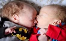 แฝดกอดกันแน่นในถุงน้ำคร่ำท้องแม่ ช่วยรอดตายอย่างปาฏิหาริย์!! (มีคลิป)