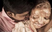 มหัศจรรย์แห่งรัก..หญิงเสียโฉมจากการถูกสาดน้ำกรด!! ได้ทั้งกำลังใจและความรักจากชายหนุ่ม