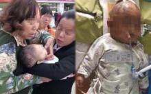 สุดสลด!! เด็กหญิงปาแอปเปิ้ลหล่นจากชั้น 24 ถูกศีรษะทารกอย่างแรง อาการโคม่า!!