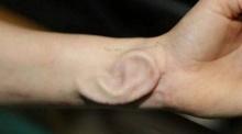 หมอเบลเยียมประสบความสำเร็จ เพาะเนื้อใบหูบนแขน-เย็บให้คนไข้