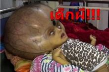 """พ่อแม่เศร้า! ลูกป่วยน้ำคั่งสมอง โดนชาวบ้านรังเกียจ-เรียกว่า """"เด็กผี"""""""