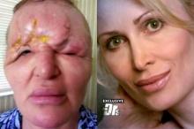อุทาหรณ์!!หญิงมะกันเผย ใบหน้าเสียโฉมหนัก หลังฉีดฟิลเลอร์ชะลอความแก่